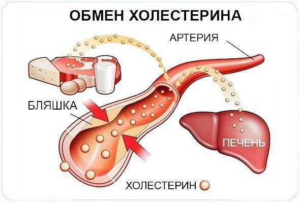 Атеросклероз артерий нижних конечностей патогенез